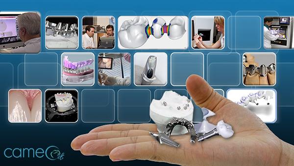 Axsys Dental Solutions - Dental CAD Software